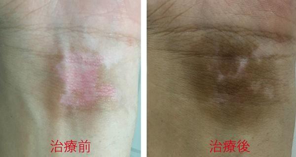 ナローバンドUVB紫外線治療前後の画像
